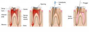 endodonzia lomturismodentale