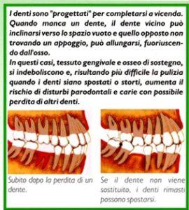 lom perdita denti