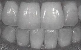 ponte lom turismo dentale