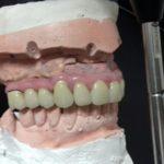 riabilitazione edentulo lom turismo dentale