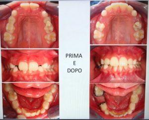 lom ortodonzia bambino