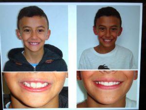 lom ortodonzia bambino malocclusione
