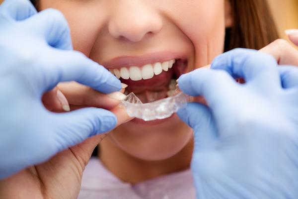 ortodonzia invisibile lom