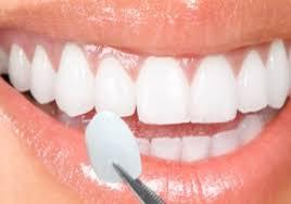 faccette dentali lom srl